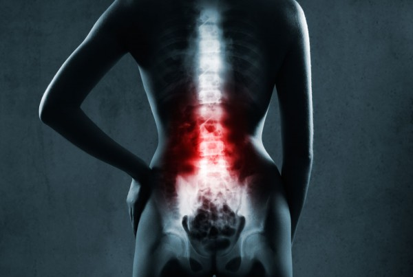 Scoliosis and other Spinal Disorders - CTC Integrated ...